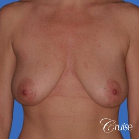 no implants with breast lift anchor - Before 1