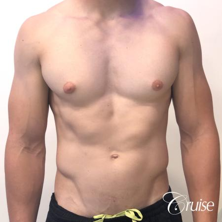 gynecomastia with puffy nipples - Before Image 1