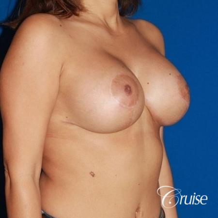 best saline breast lift with 470cc implants -  After Image 3