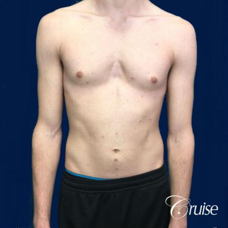 Top Gynecomastia Specialist Dr. Cruise - Before Image