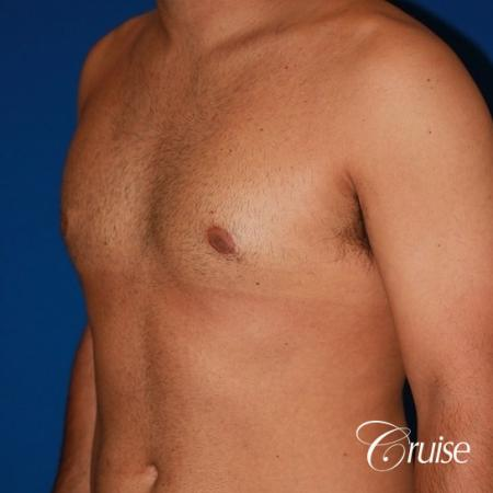 moderate gynecomastia on adult -  After Image 3