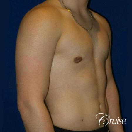 Best Gynecomastia surgeons Southern California -  After Image 4