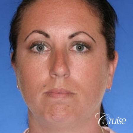 before and after photos of female chin implant - Before Image 1
