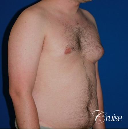 asymmetric gynecomastia moderate - Before Image 4