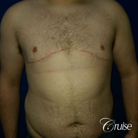 Moderate Gynecomastia Pedicle - After Image 1