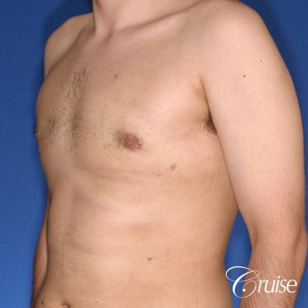 moderate gynecomastia puffy nipple -  After Image 3