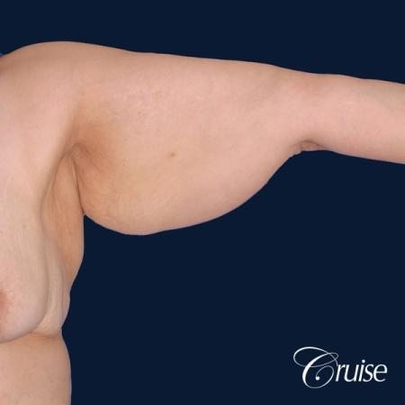 best arm lift newport beach - Before and After Image 3