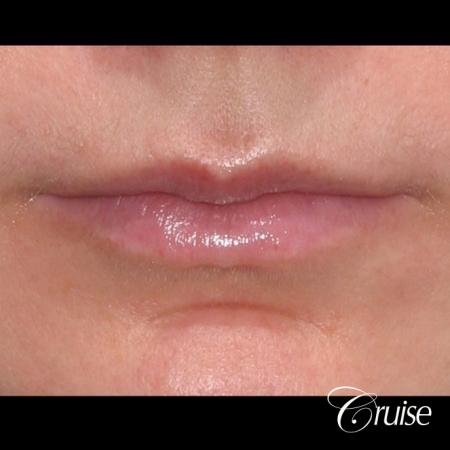 best before and after of lip filler - Before Image