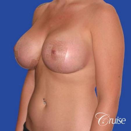 best photos of 20 yr old with saline breast reduction surgery -  After Image 3