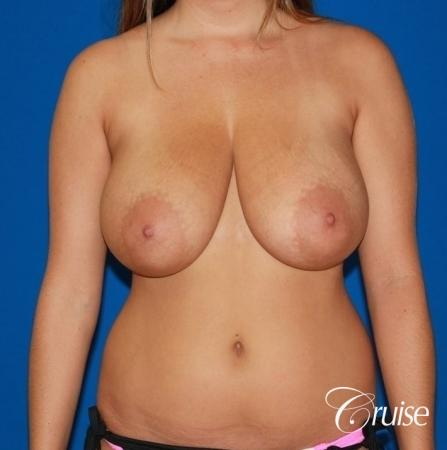 best saline breast reduction on large breast - Before Image