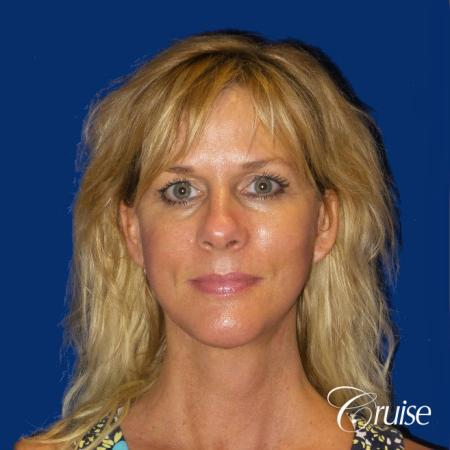 Neck Lift With Lower Face Lift - After Image
