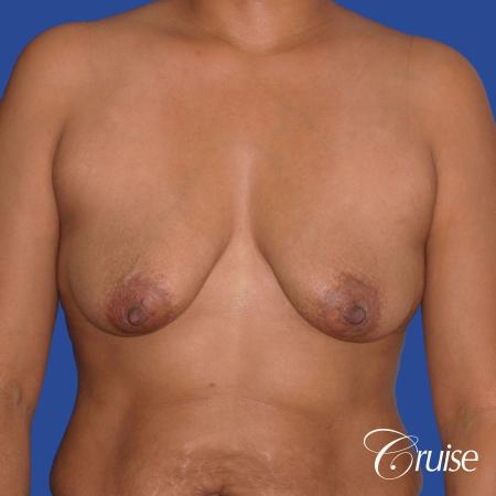 best breast lift donut with saline augmentation - Before 1