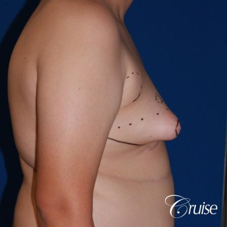 young boy with gynecomastia during puberty gets surgery - Before Image 4