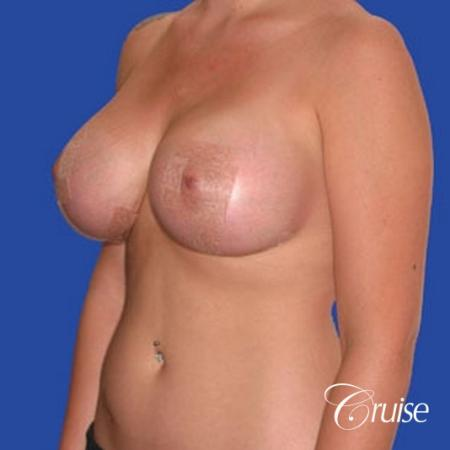 best before and after of silicone breast lift anchor in Newport Beach -  After Image 2