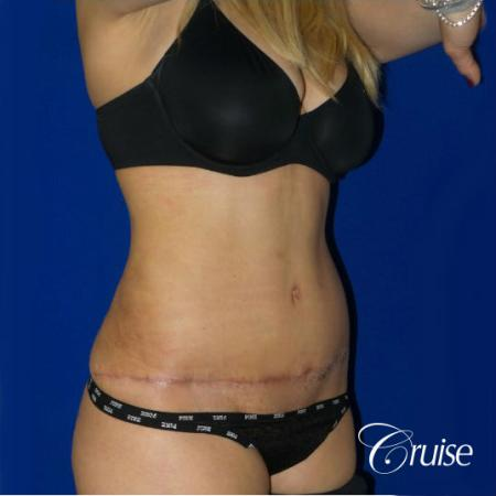 Tummy Tuck Standard Incision - After Image 5