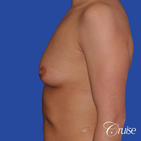Breast Augmentation - Before and After Image 2