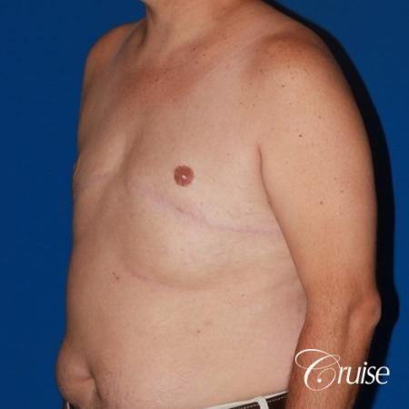 male breast severe gynecomastia free nipple graft anchor - After Image 3