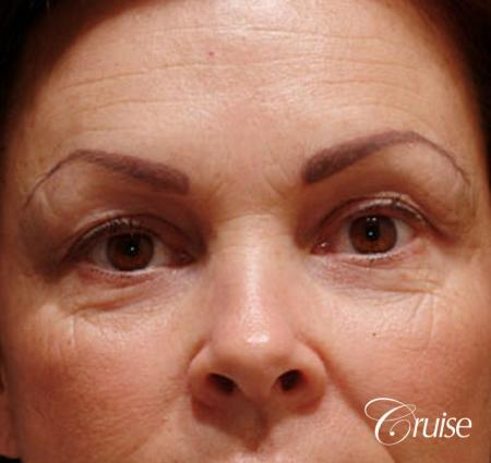 best blepharoplasty eye surgery photos - Before Image