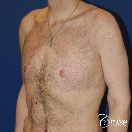 severe weight loss gynecomastia upper body lift - 1 After Image 2