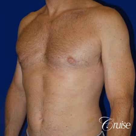 best gynecomastia results on 45 year old -  After Image 2