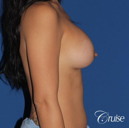 Breast Augmentation - After Image 4