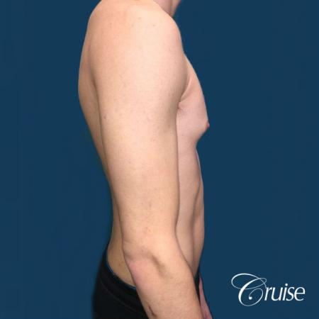Top Gynecomastia Specialist Dr. Cruise - Before Image 4