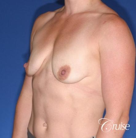 best breast lift anchor on athletic body type - Before Image 2