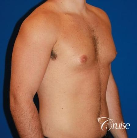 athletic adult with puffy nipple - Before Image 3