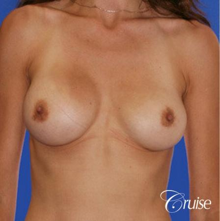 best pictures of breast implant rupture saline - Before Image 1