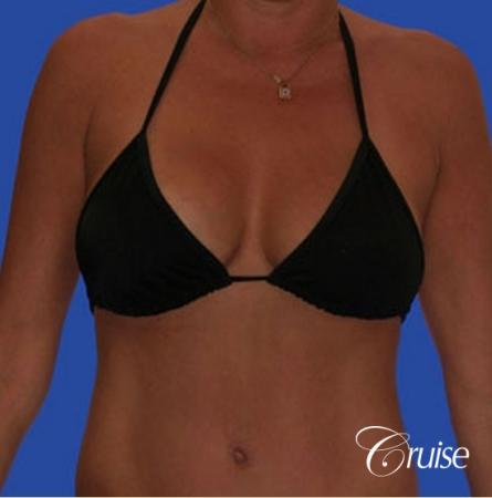 photos of best breast lift anchor with saline implants in Newport Beach -  After Image 3