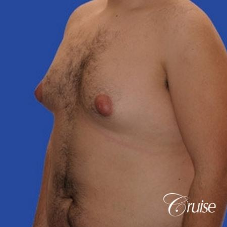 moderate gynecomastia with pointy nipples male - Before Image 2