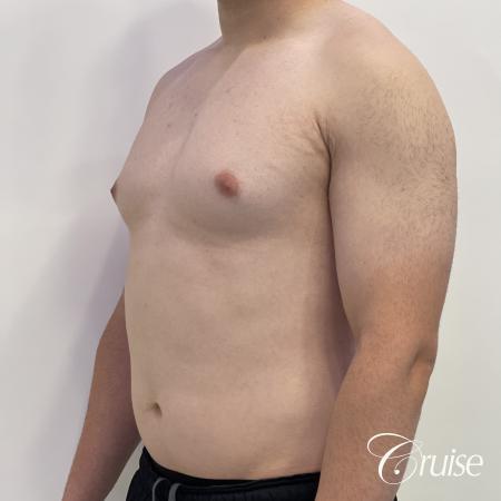 Gynecomastia: Patient 123 - Before 2