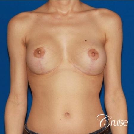 best breast lift revision with moderate profile silicone implants -  After 1