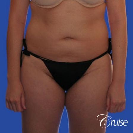 best full body liposuction abdomen flanks thighs knees - Before Image