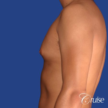 best gynecomastia results with plastic surgeon and specialist - Before and After Image 2