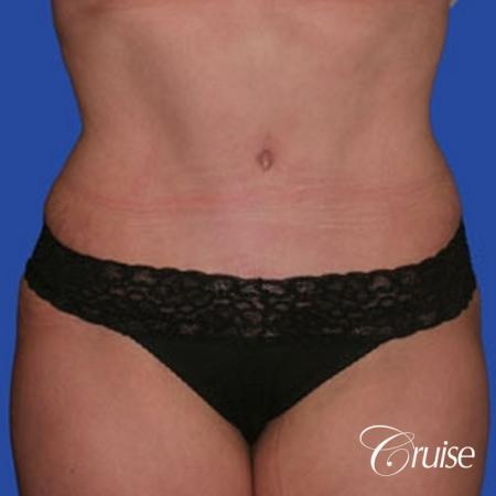 best dramatic flank liposuction pictures -  After Image 1