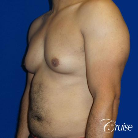 Best gynecomastia specialist in united states - Before 2