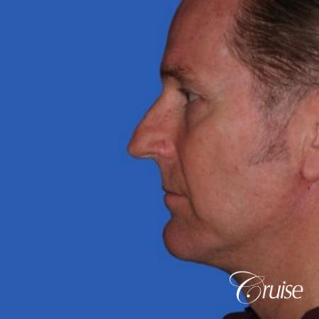 52 yr old male with medium square chin implant -  After Image 2