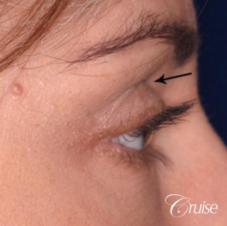 best soft tissue filler using Juvaderm - Before Image 2