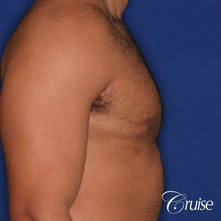 26 yo athletic patient with moderate gynecomastia -  After Image 3