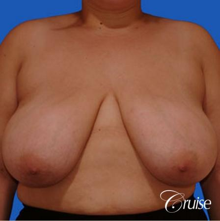 breast reduction surgery on large breast - Before Image 1