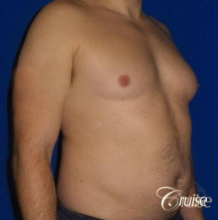 male breast reduction surgery - Before Image 2