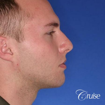 best chin implant on male with medium square jaw -  After Image 3