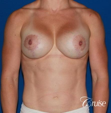 best breast lift anchor on athletic body type -  After Image 1