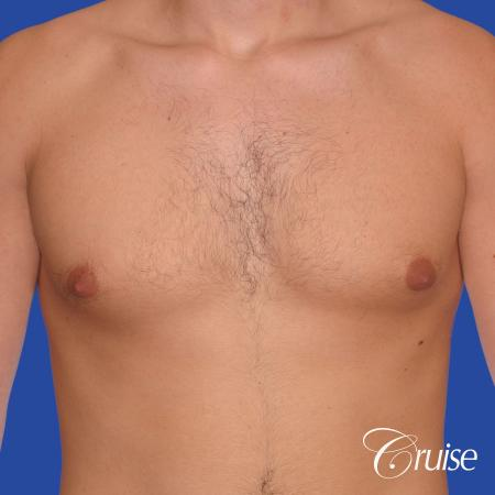 24 yr old body builder mild gynecomastia - Before Image 1