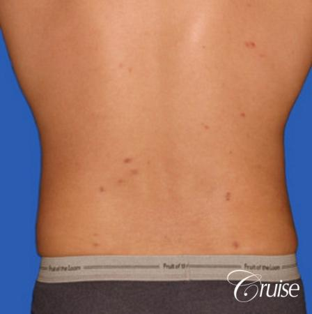 best liposuction to contour a males body -  After Image 3