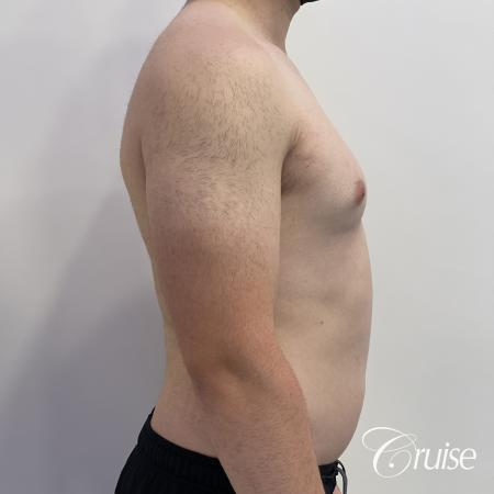 Gynecomastia: Patient 123 - Before and After 5