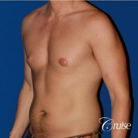 puffy nipple on low body fat - Before Image 3