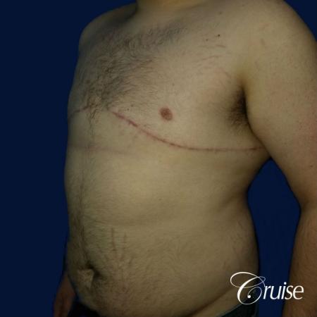 Moderate Gynecomastia Pedicle - After Image 3