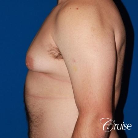 20 with Gynecomastia and puffy nipple - Before Image 2